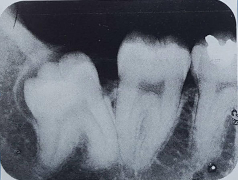 Ząb mądrości odchylony do tyłu
