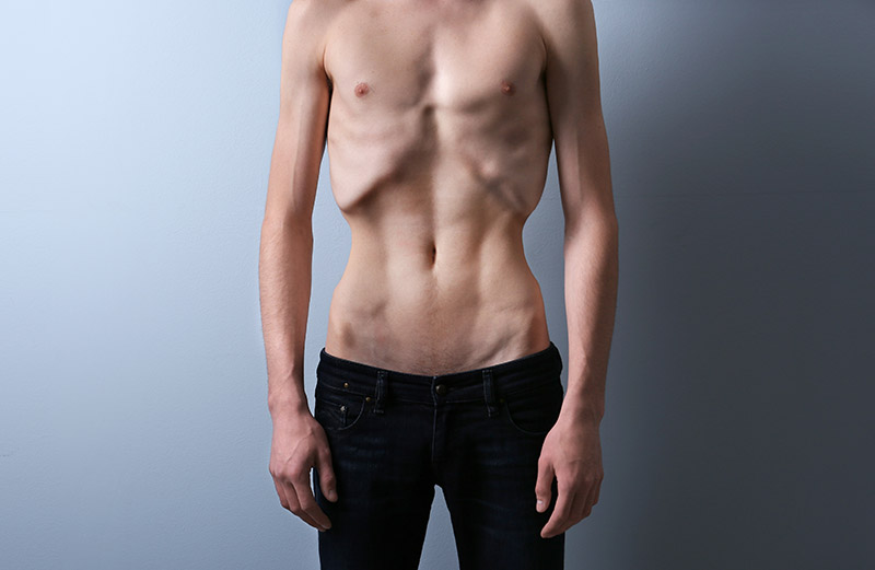 Anoreksja rzadziej dotyka mężczyzn.