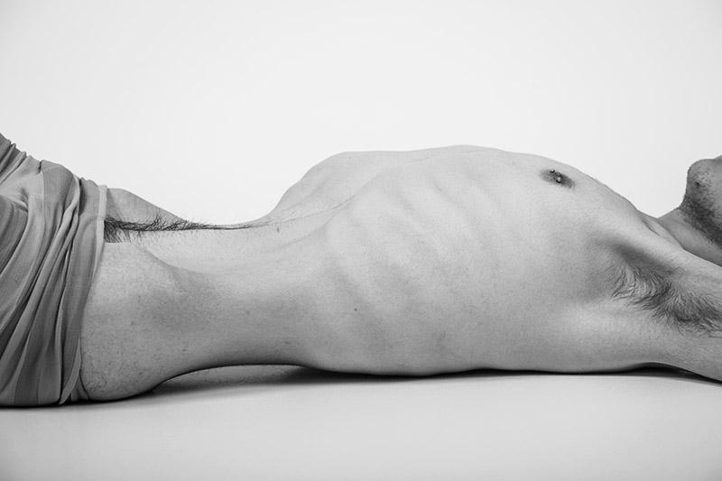 Anoreksja - zczasem dochodzi do wyniszczeniea organizmu