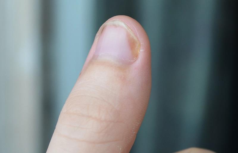 Łuszczyca paznokci.