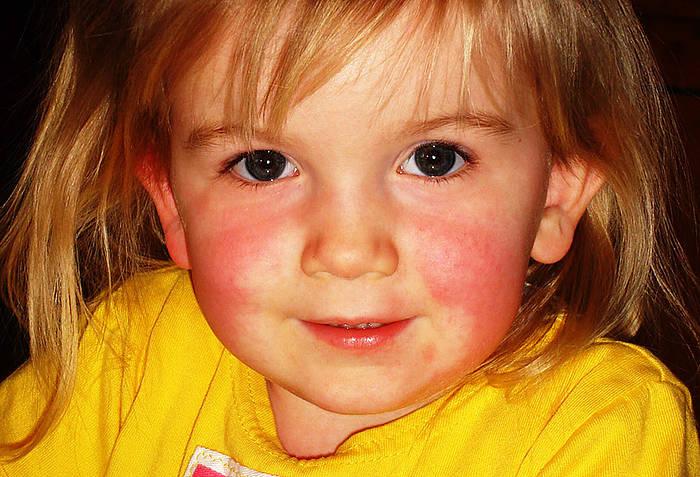 Szkarlatyna objawy | Szkarlatyna u dzieci