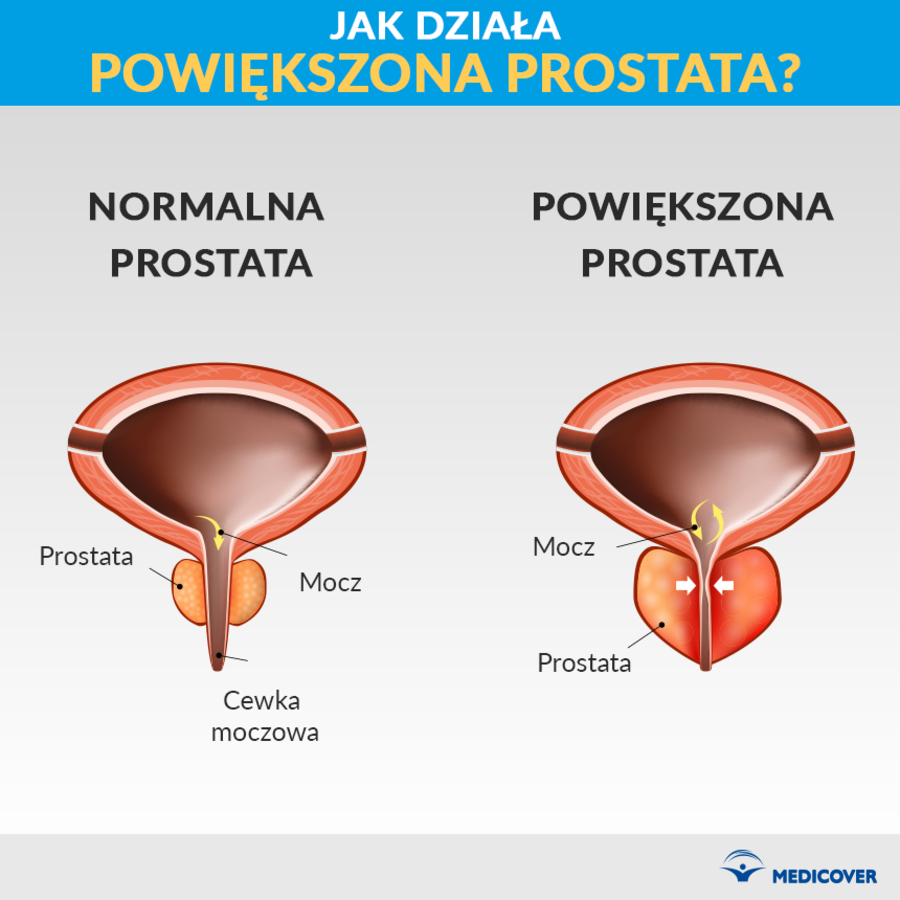 powiększona prostata jak leczyć