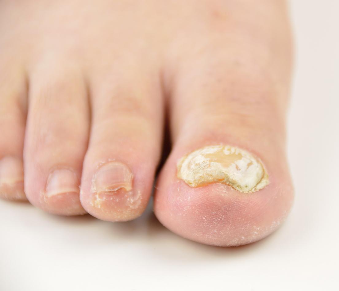Objawem grzybicy może być pogrubiona, krucha, zażółcona płytka.