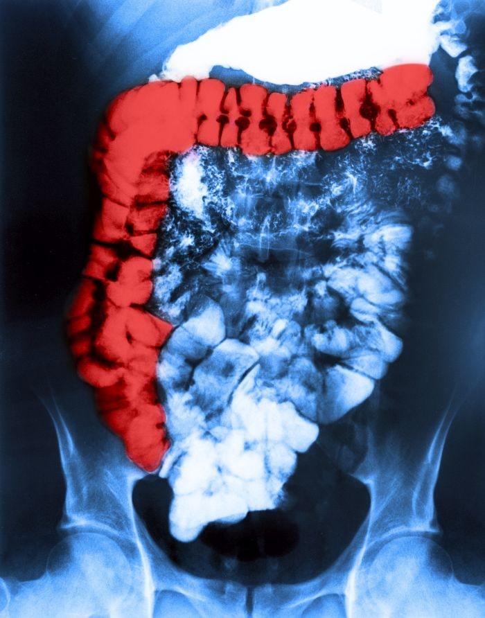 Zespół jelita drażliwego jest przewlekłą chorobą przewodu pokarmowego