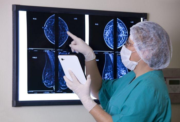 Zdjęcie zrezonansu magnetycznego piersi