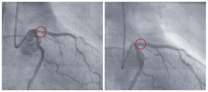 Tętnica przed ipo zastosowaniu balonu poszerzającego (angioplastyka)