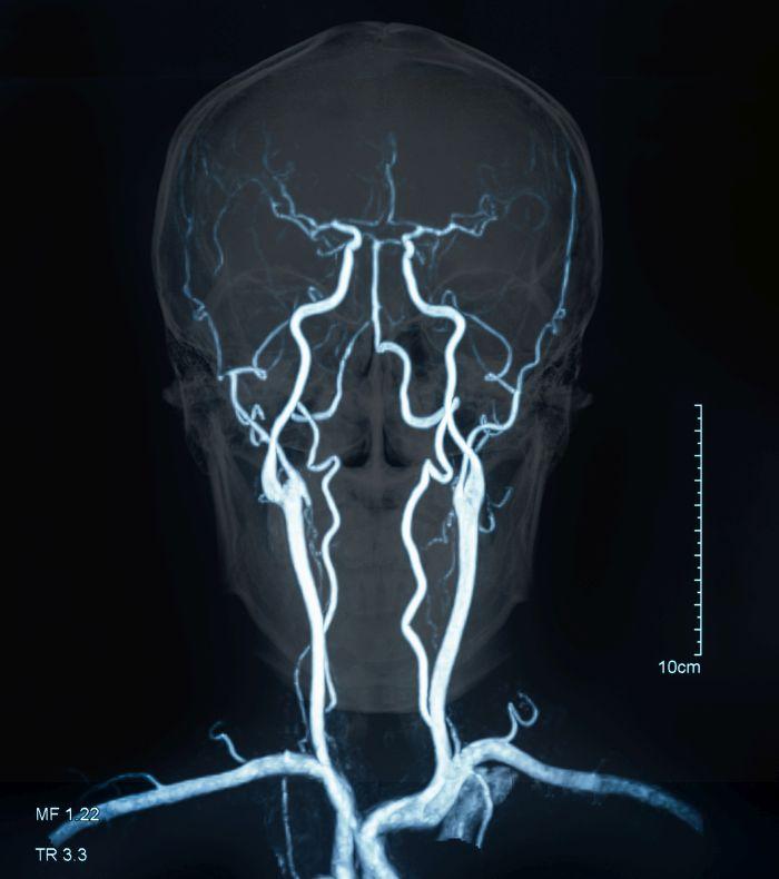 Miażdżyca może obejmować m.in. tętnice mózgu