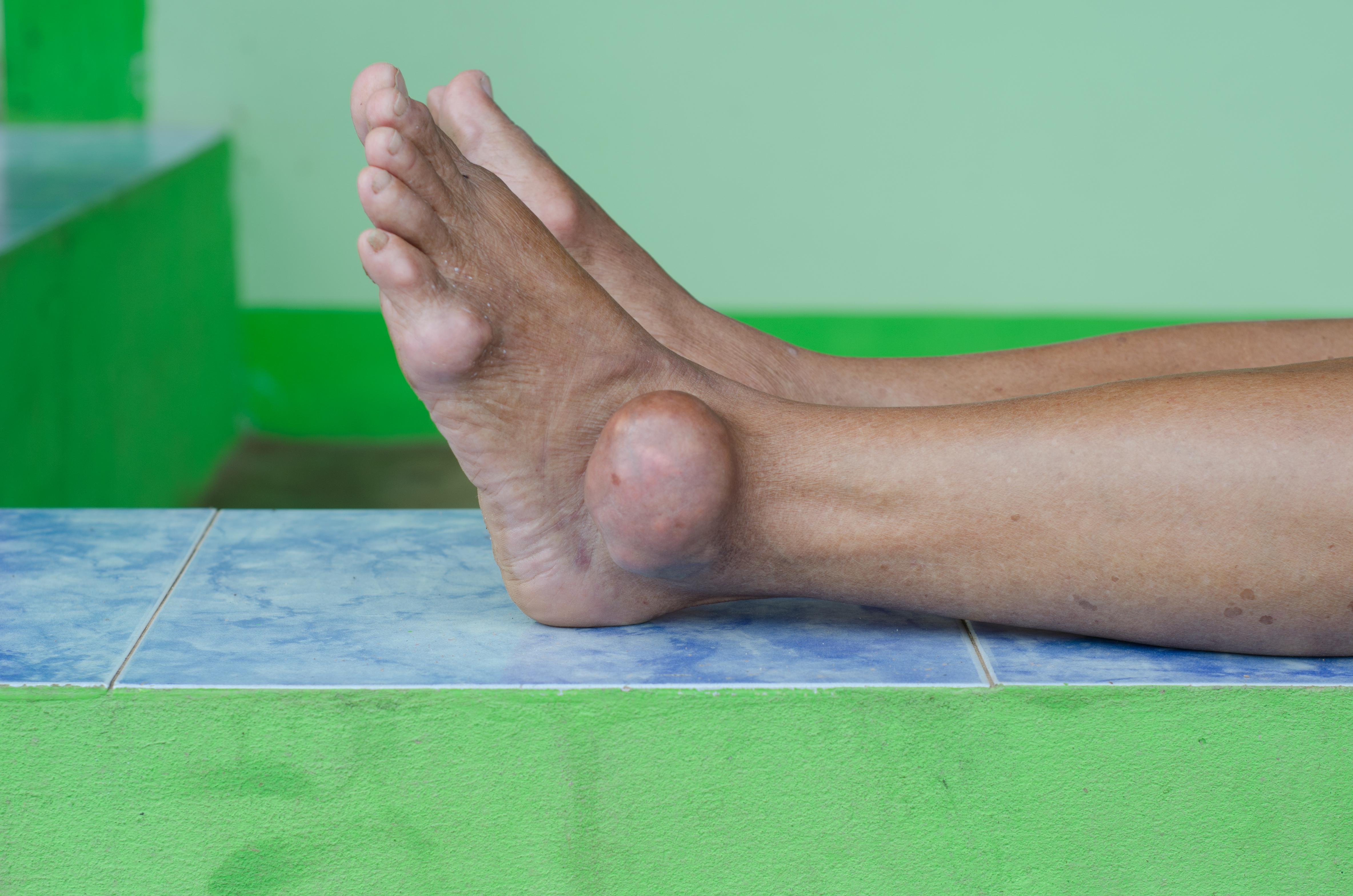 Charakterystyczną cechą dny moczanowej są bóle stawów.