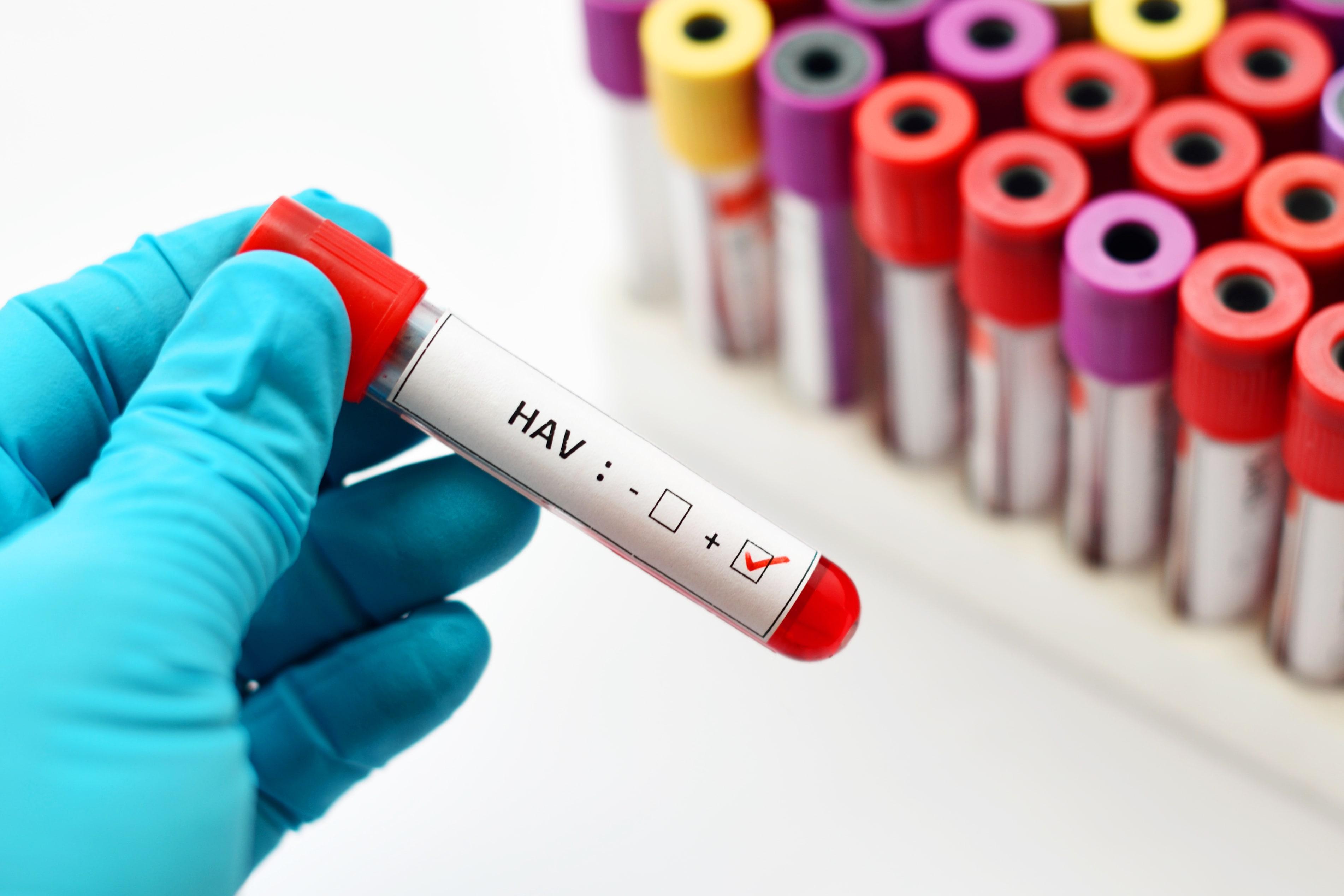 Od zakażenia wirusem HAV do pojawienia się pierwszych objawów mija średnio 28 dni.