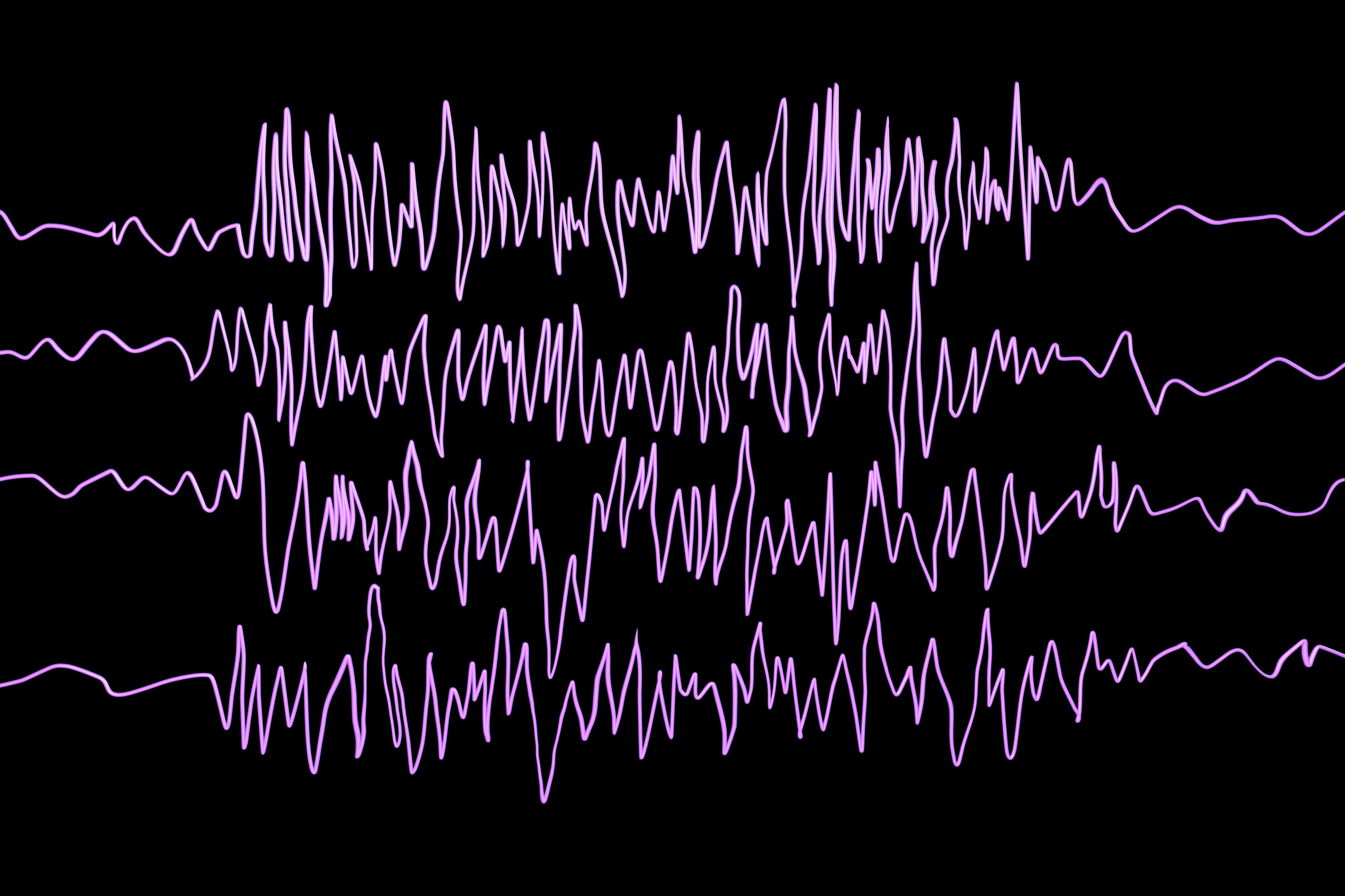 Elektroencefalografia upacjenta zpadaczką podczas napadu padaczkowego