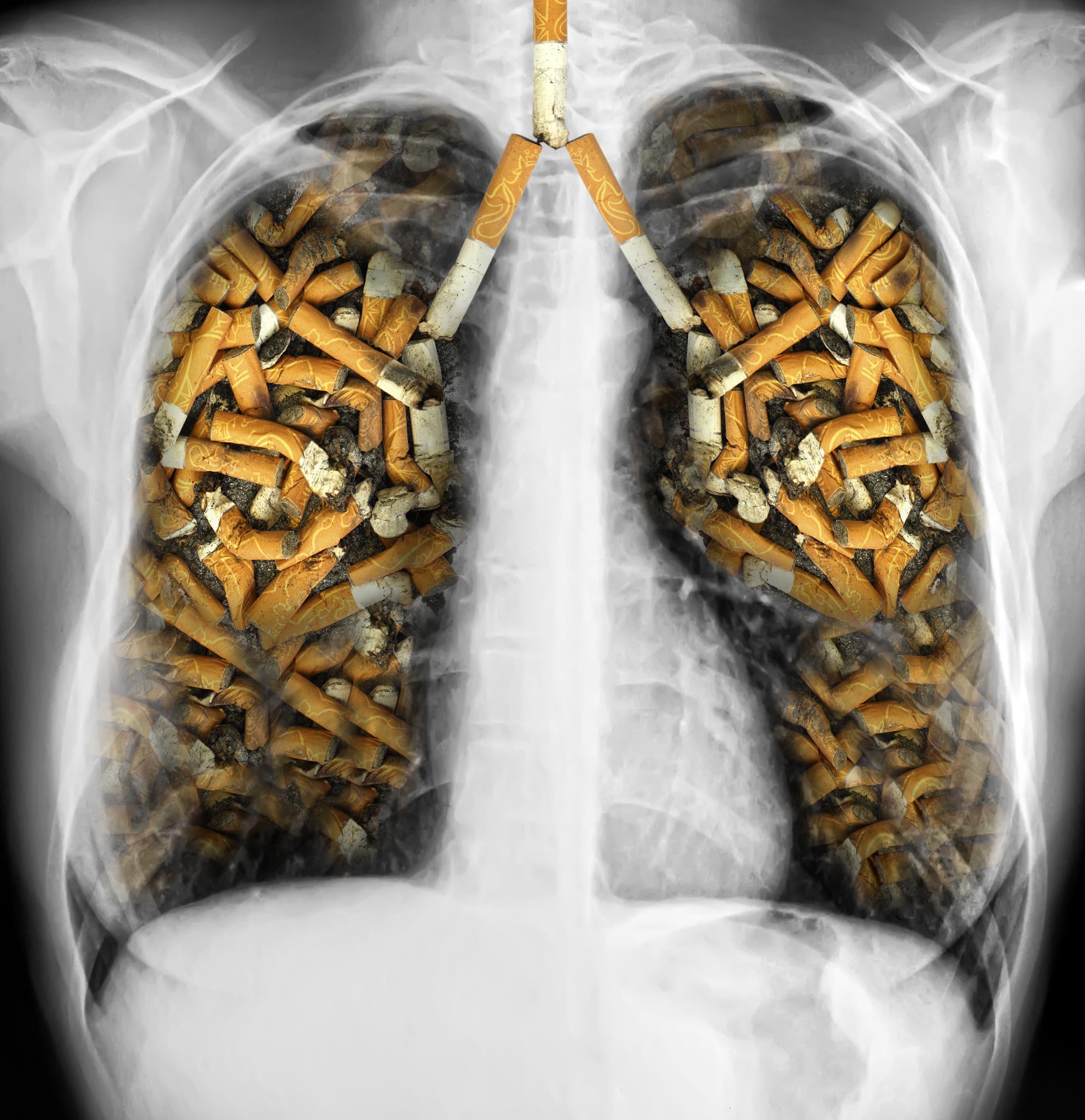 Palenie papierosów powoduje raka płuc atakże negatywnie wpływa na nasz organizm