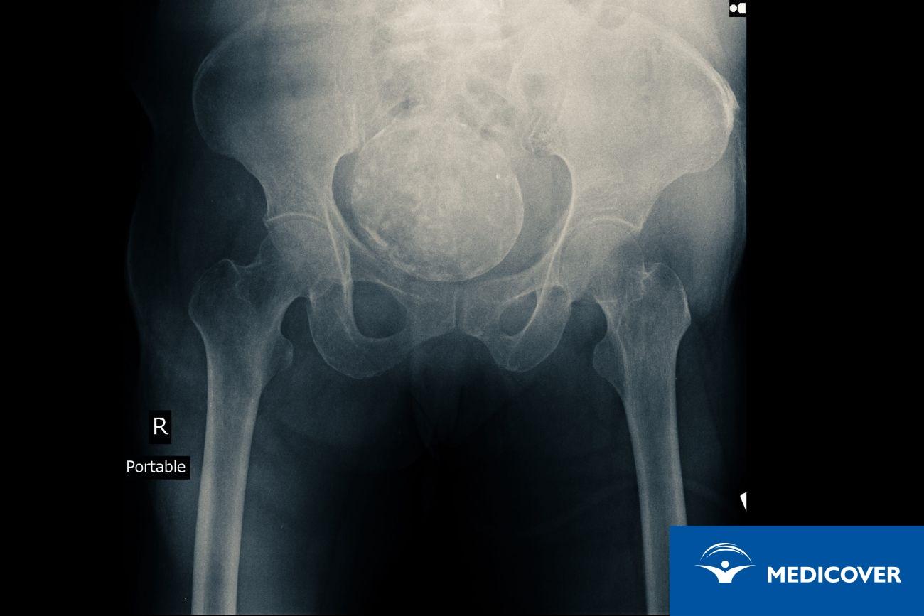 Rak jajnika na zdjęciu rentgenowskim