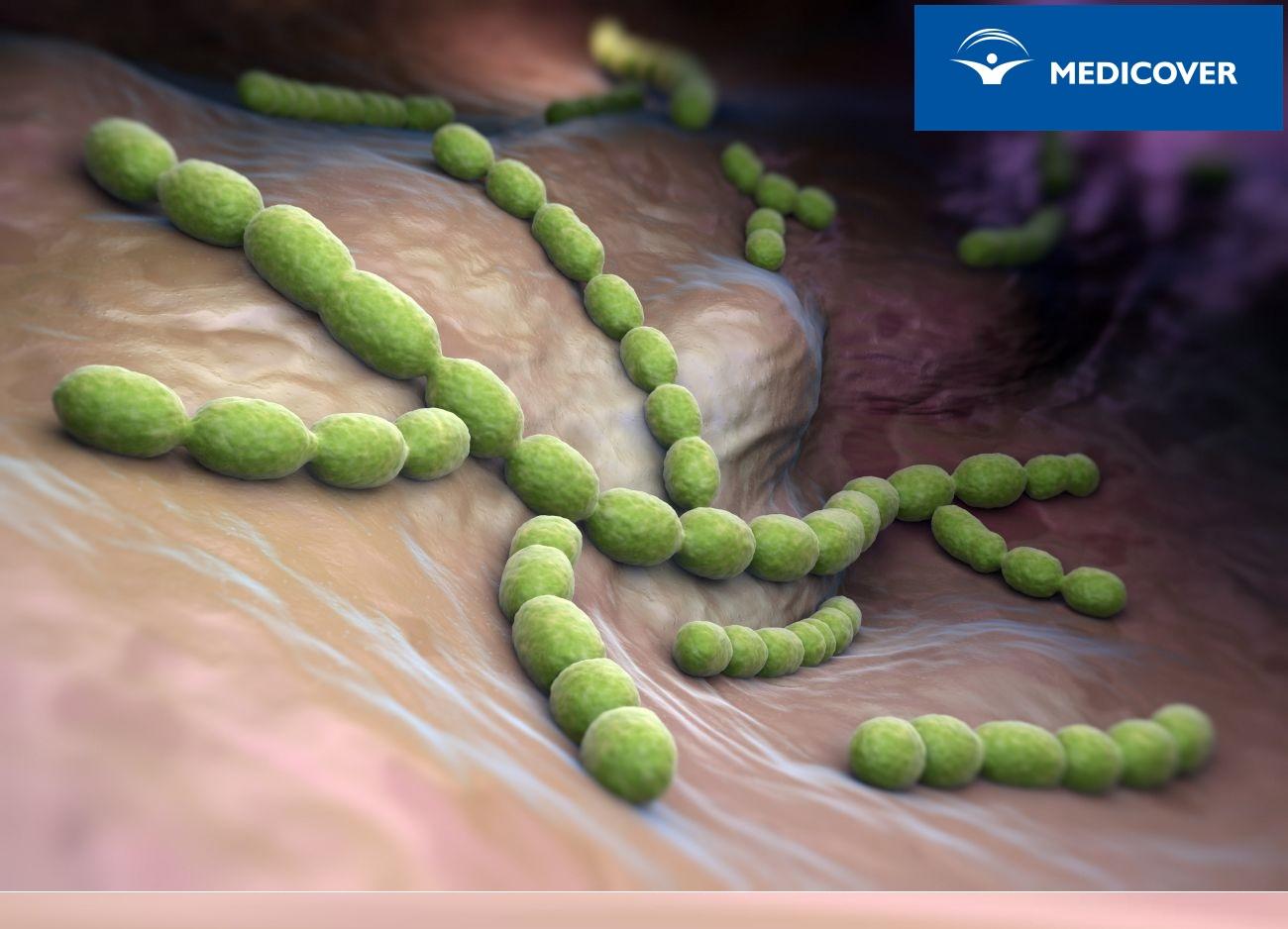 Pneumokoki to bakterie Streptococcus pneumoniae.