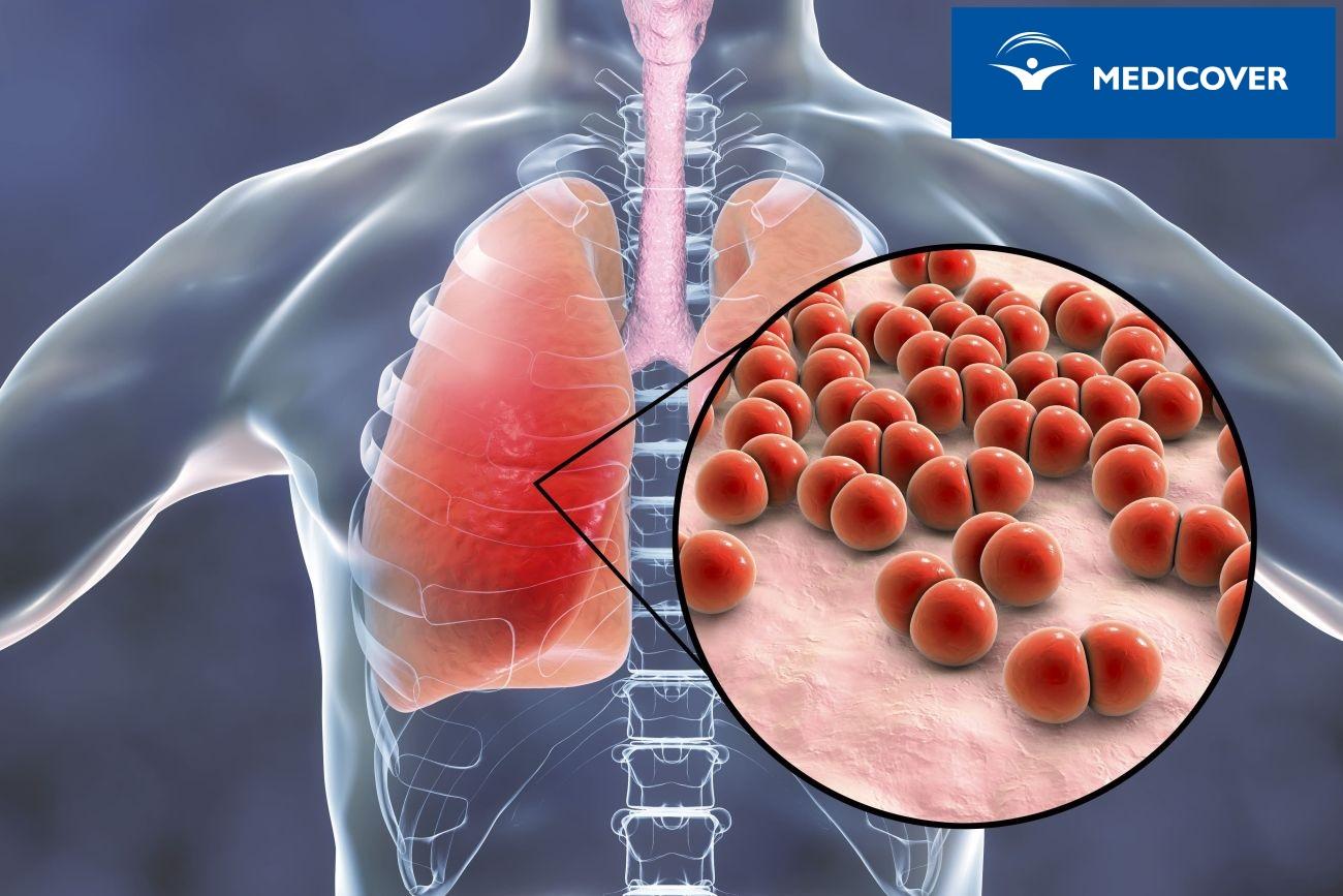 Zapalenie płuc wywołane pneumokokami.