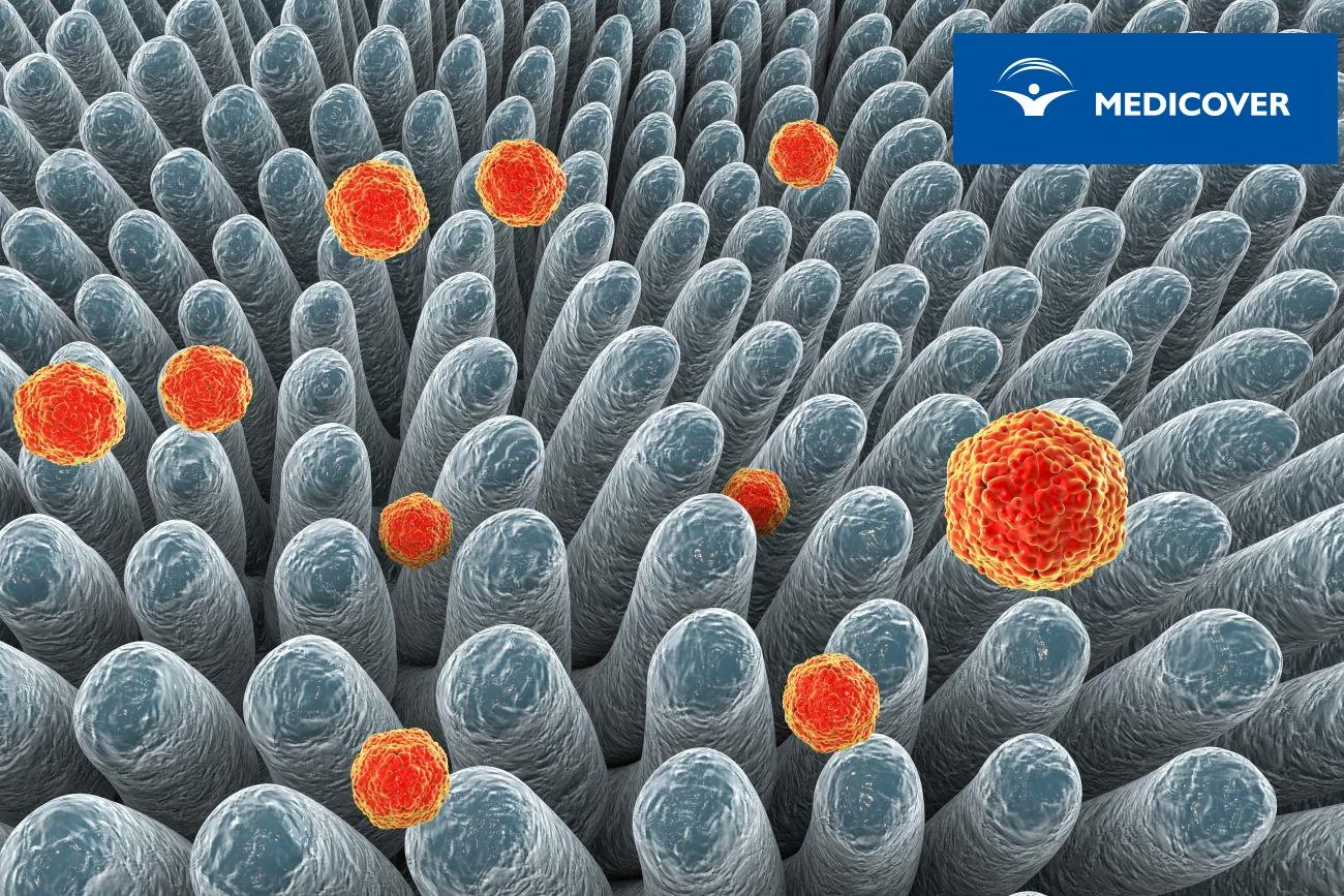 WZW A- wirus HAV infekuje jelito