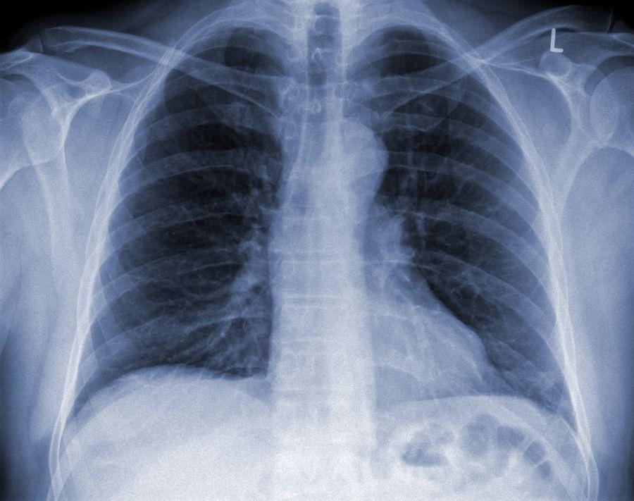 Efektem zakażenia bakterią Klepsiella pneumoniae może byc ostre zapalenie płuc