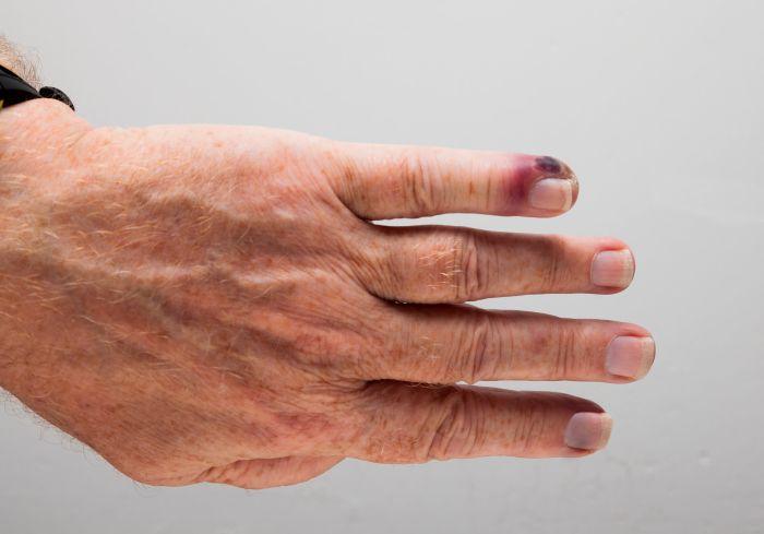Palec zainfekowany posocznicą