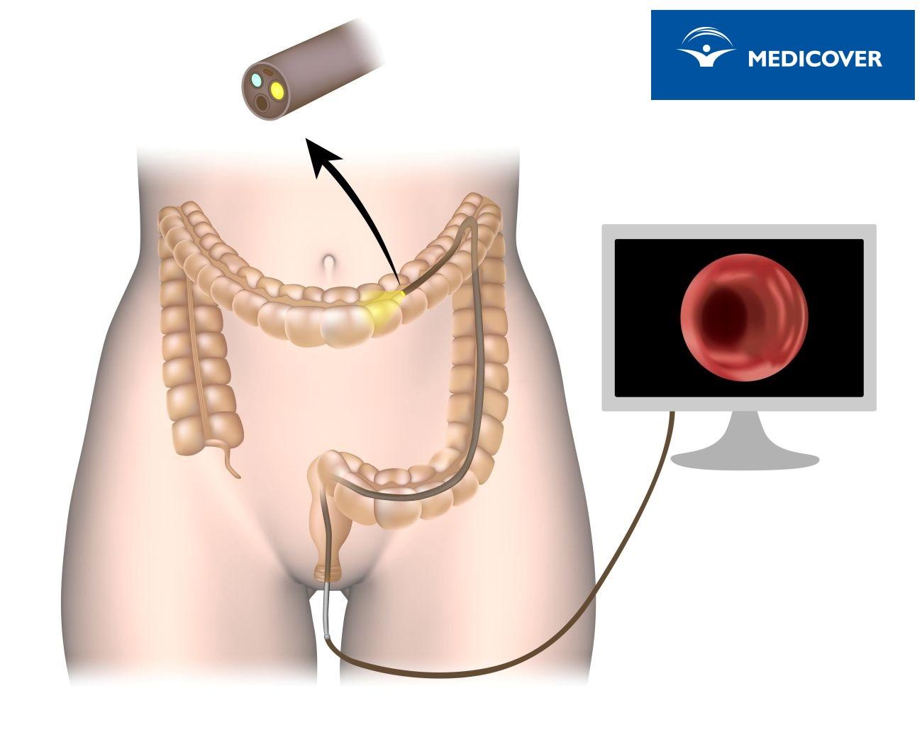 Kolonoskopia przeprowadzana jest przy użyciu kolonoskopu