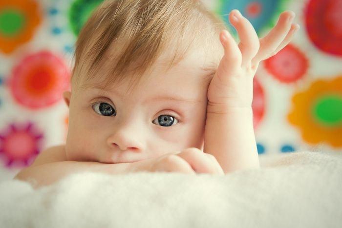 Ile chromosomów ma człowiek zzespołem Downa? Wtrisomii 21 przez błędny podział komórek rozrodczych powstają 24 chromosomy zamiast 23.