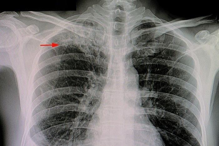 Gruźlica na zdjęciu rentgenowskim płuc.