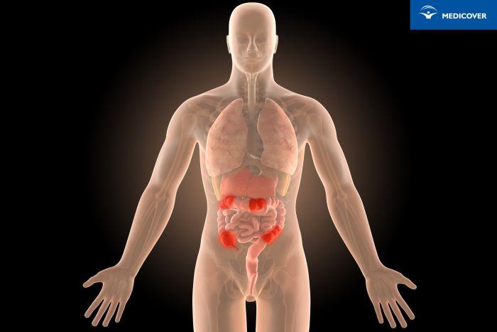 Choroba Leśniowskiego-Crohna jest przewlekłym stanem zapalnym, który powstaje na granicy jelita cienkiego zjelitem grubym