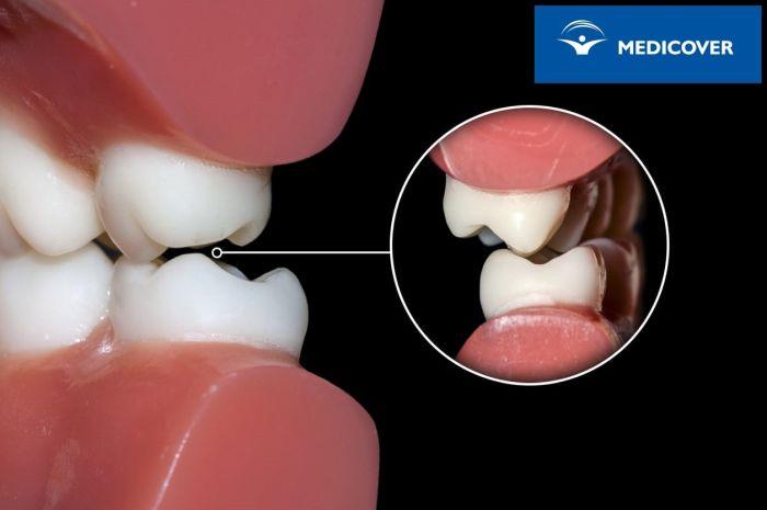 Wady zgryzu to główny powód decydowania się na aparaty ortodontyczne