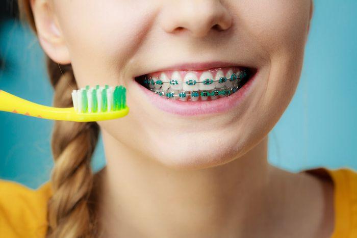 Nosząc aparat ortodontyczny należy zachowywać higienę jamy ustnej