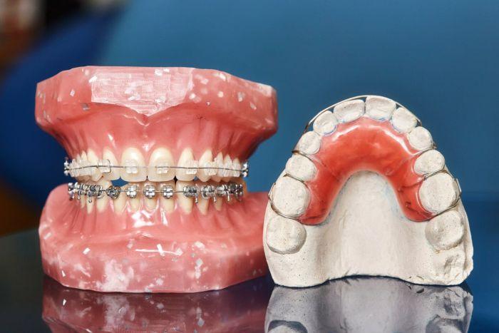 Skutkiem noszenia aparatu ortodontycznego jest unormowanie zgryzu