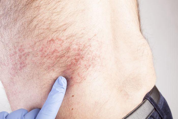 Szybkie wdrożenie leczenia przeciwwirusowego może złagodzić przebieg półpaśca