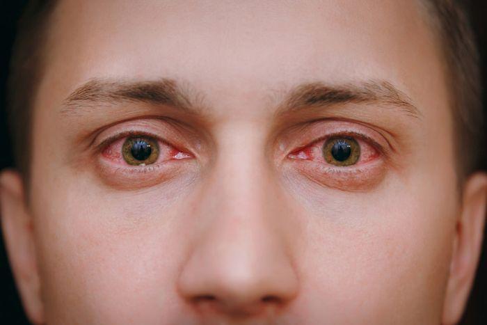 Łzawienie oczu to jeden znajbardziej charakterystycznych objawów alergii wziewnej