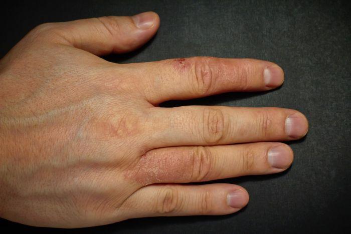Łojotokowe zapalenie skóry może również wystąpić na dłoniach